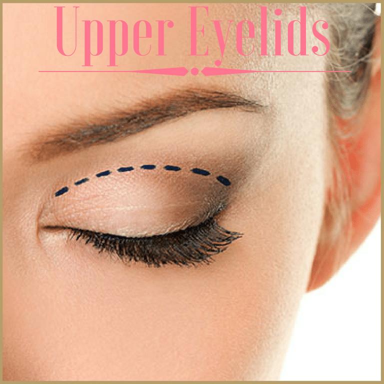 upper blepharoplasty surgery
