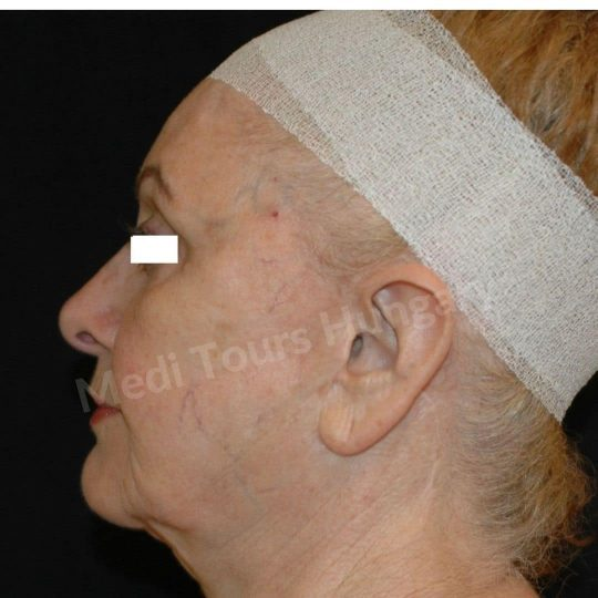 FaceLift Surgery in Budapest with our Top Plastic Surgeons