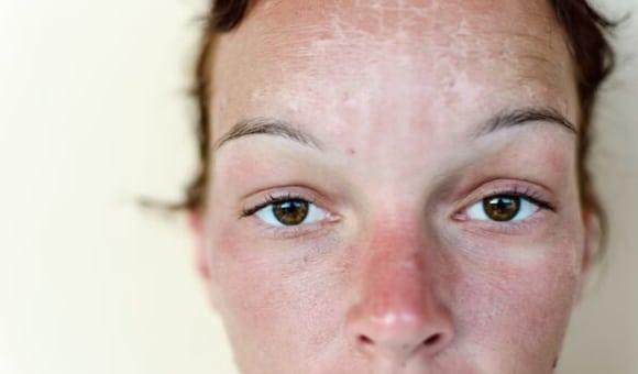 facial rejuvenation treatment for sun damaged skin on woman