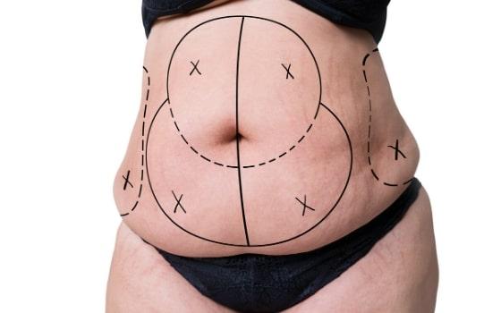 tummy lipo regions