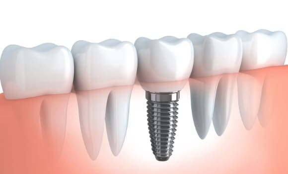 dental model of an implant