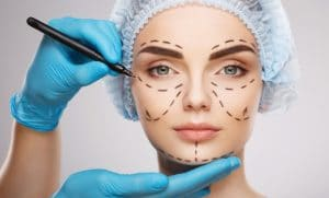female face marked for plastic surgery