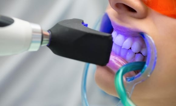 professional in office tooth whitening procedure