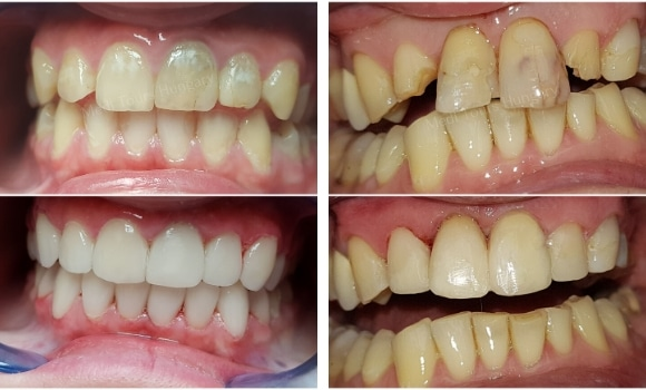 veneers composite and porcelain compare